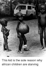 Starving Child Meme - this kid is the sole reason why african children are starving