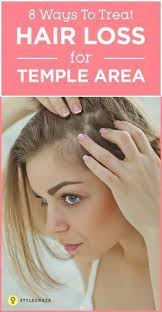 female balding at temples hairstyles 8 simple ways to treat hair loss at the temples hair loss