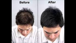 i just want my hair to grow back how to stop dht hair loss