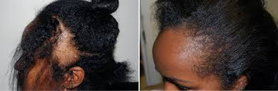 hair transplant for black women hair loss associated with age becoming more common natural hair