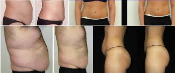 red light therapy cellulite red light therapy kateli integrative health center