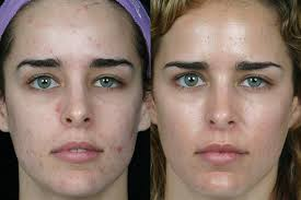 best blue light for acne blue light laser therapy treament santa barbara sb aesthetics
