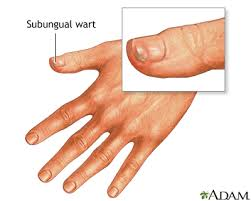 How Do You Get Planters Warts by Warts Medlineplus Medical Encyclopedia