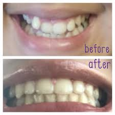 Groupon Teeth Whitening Chicago My Tooth Place 11 Photos U0026 16 Reviews Orthodontists 5934