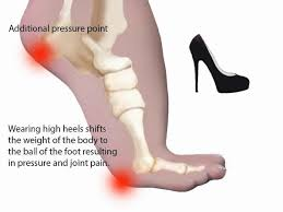 Comfortable High Heels For Bunions Are Girls Really Comfortable With High Heels Updated 2017 Quora