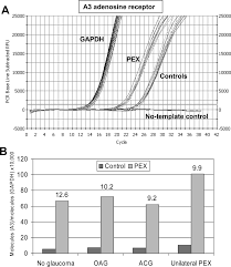 selective upregulation of the a3 adenosine receptor in eyes with