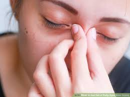 3 ways to get rid of puffy eyes from crying wikihow