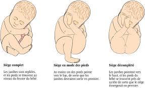 position siege bebe ventre mon bébé est en siège halimi