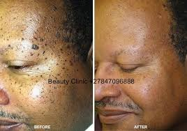 natural tattoo removal cream scar removal oil and dark spots