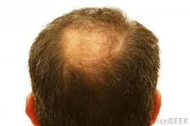 thinning hair in women on top of head why is hair loss more common among men than women