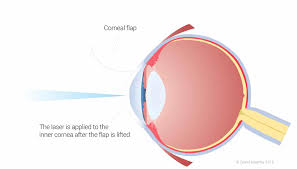 Can Lasik Cause Blindness Eye Problems Associated With High Myopia Focus Clinic