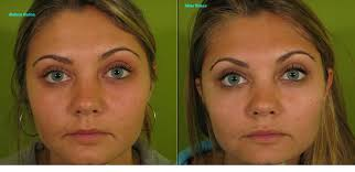 human ken doll before and after eyebrow lift botox before and after