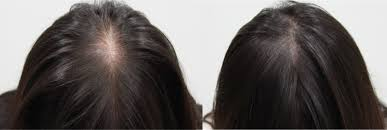 hair styles for women with center bald spots the 5 best makeup solutions to cover bald spots fast