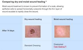 which will heal faster a cut which is covered or quora