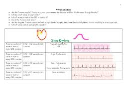 129 best ecg ekg images on pinterest nursing schools nursing