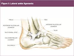 Anterior Fibular Ligament Ankle Injury When Instability Becomes Chronic Part I El Paso U0027s