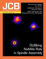 tracking individual secretory vesicles during exocytosis reveals