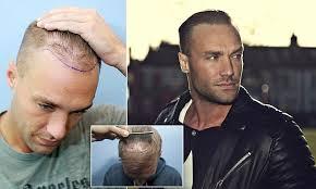 declan donnelly hair transplant blog hair repair clinic part 2