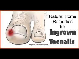 natural home remedies for ingrown toenails youtube