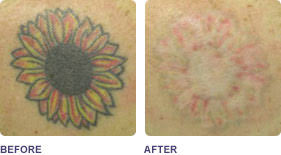 laser tattoo removal from u20ac50