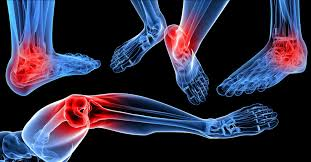 yellow nails toe nail fungus treatment fungal toenail treatment kelowna bc kelowna foot clinic