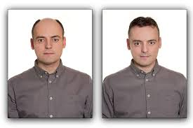 male hair extensions before and after hair replacement special for men at cape coral hair salon