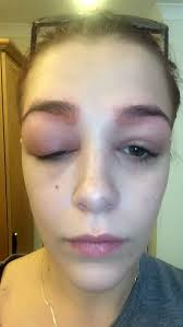 19 year old polly smith u0027s hd eyebrow treatment went very badly