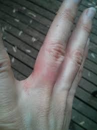 wedding ring dermatitis wedding ring rash