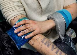 5 trusted methods to manage pain after laser tattoo removal