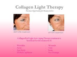 collagen red light therapy business opportunity for beauty salons ppt video online download