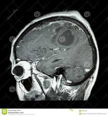 Sagittal Brain Mri Anatomy Film Mri Of Brain With Brain Tumor Sagittal Plane Side View