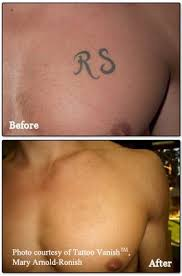 how to remove extra tattoo ink from skin what you need to know