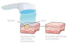 blu light therapy for acne fda approves pulsaderm new blue led skincare product ledinside