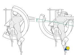 proximal femur reduction u0026 fixation closed reduction short