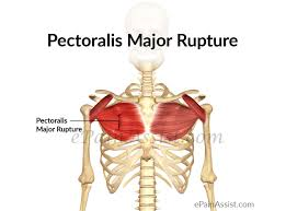 pectoralis major rupture treatment exercise prevention causes