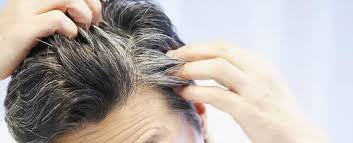 black seed for hair loss black seed nigella sativa and how to use it islamic hadith