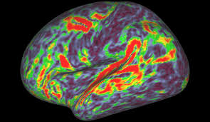 Brain Mapping Nih Funded Scientists Identify 97 Previously Unknown Regions Of