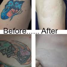 la tattoo removal closed tattoo removal 8000 sunset blvd