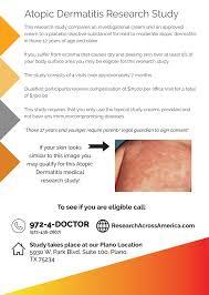 atopic dermatitis eczema research study plano tx