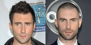 before and after thinning mens haircut men s haircuts before and after pictures of men s haircuts