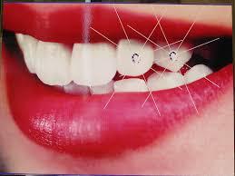 diamond stud in tooth beautiful tooth jewels teeth stones 50 gems kit 20 pcs