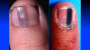 alert if you see a black stripe like this on someone u0027s fingernail