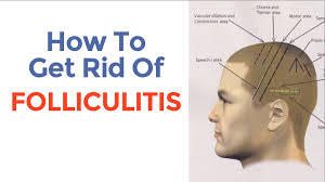 how to cure folliculitis and decrease excessive hair loss youtube