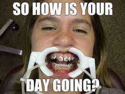 Braces Off Meme - so on monday i finally get my braces off so here have a