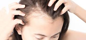 home remedies for hair loss for over 50 baldness is there any cure for it