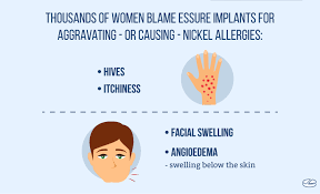 allergies to titanium what is essure made of symptoms of nickel allergy with essure