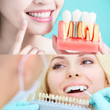 Comfort Dental San Jose Cosmetic Dentistry San Jose Dental Implants Patrick Walker Dds