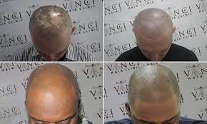 bald men turn to hair tattoos to creates the illusion of short