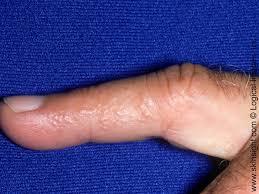 itchy bumps on hands that spread dyshidrotic eczema national eczema association