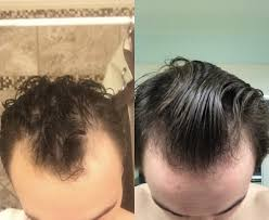 significant hairline temple regrowth on finasteride only